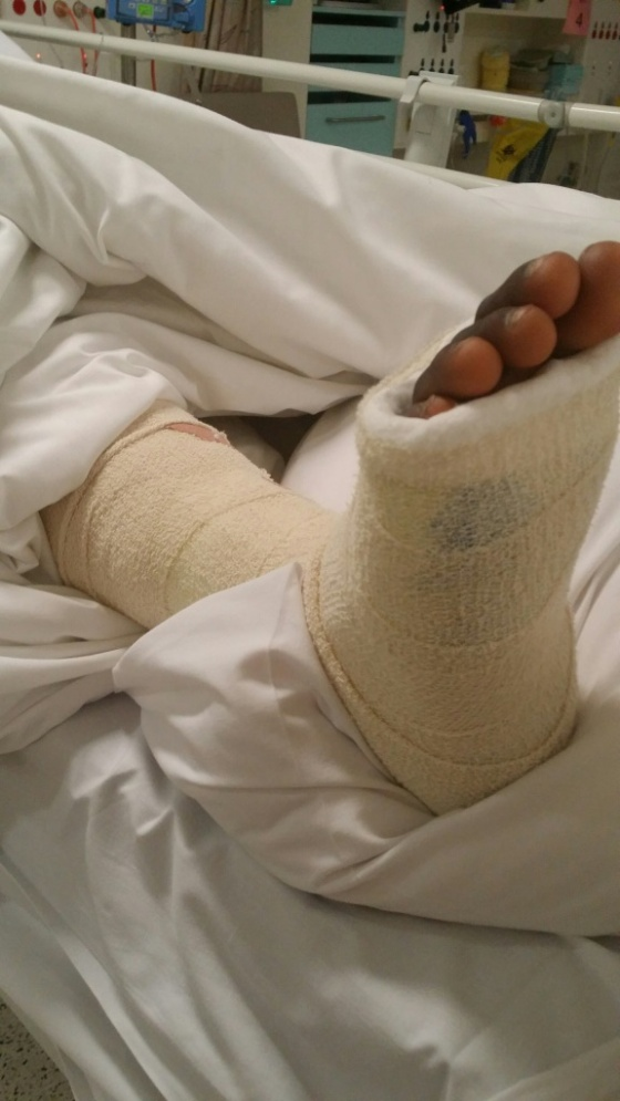 A child's foot after a spot of GREAT surgery